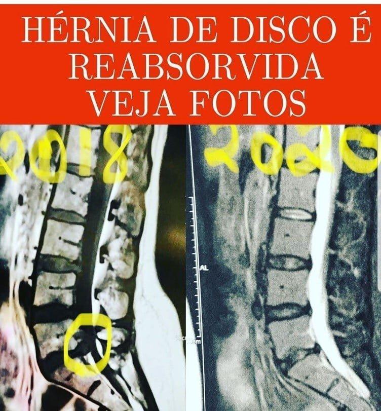Hernia reabsorvida