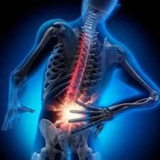 dor de hernia