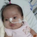 Bebê com síndrome de Down