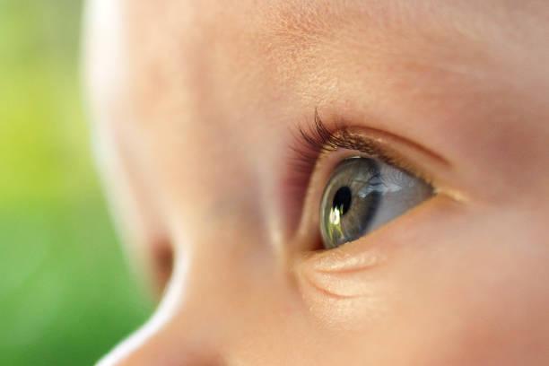 Cegueira afeta 33 mil crianças no Brasil