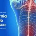 Protocolo para a Reabilitação de Hérnia